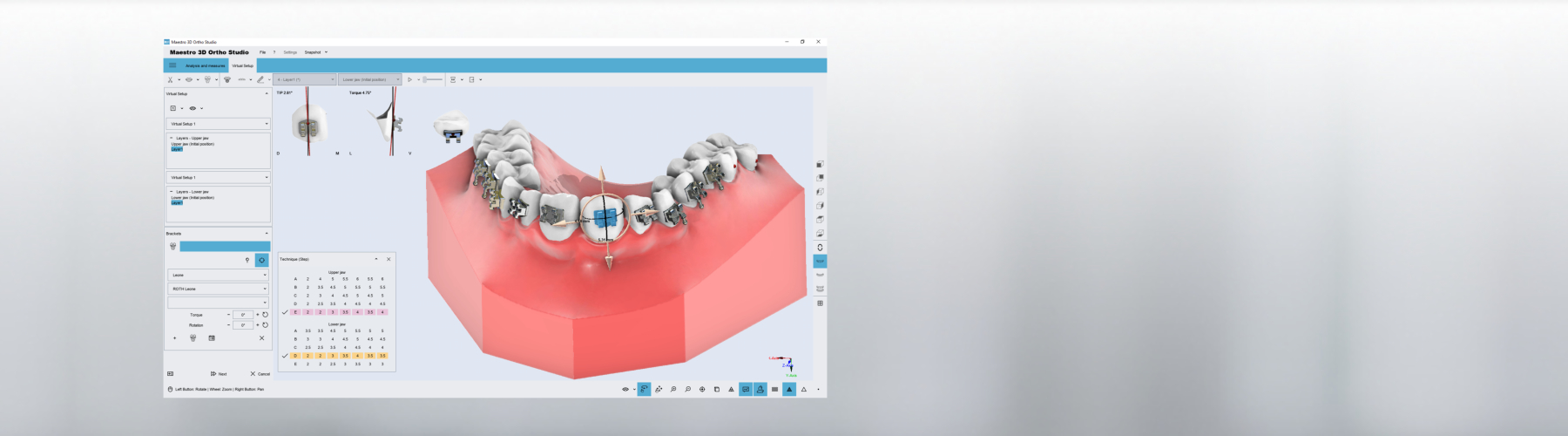 Maestro 3D | Dental Studio | Ortho Studio