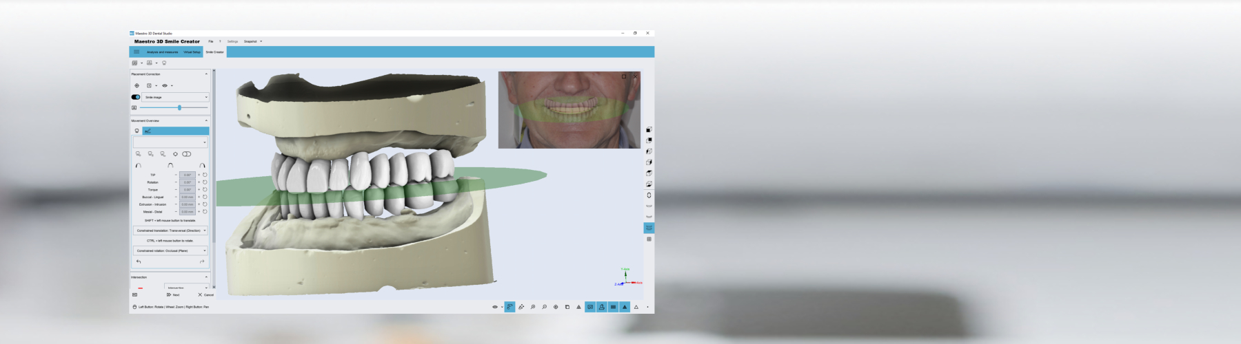 Maestro 3D | Dental Studio | Smile Creator | 3D Denture Guide