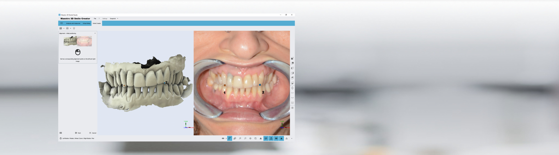 Maestro 3D | Dental Studio | Smile Creator | Digital Mockup