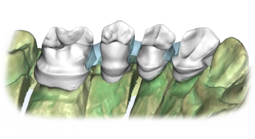 maestro3d dental studio | dental restoration