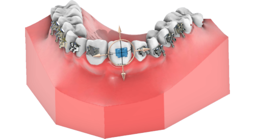 maestro3d dental studio brackets placement