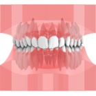 Maestro 3D | Dental Studio | Ortho Studio | Dental Restoration | Smile Creator