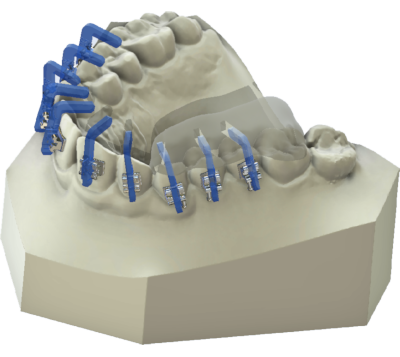 maestro3d | Dental Studio | Ortho Studio | Clear Aligner | Brackets JIG Tray