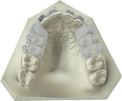 maestro3d | Dental Studio | Ortho Studio | Clear Aligner | Brackets Tray
