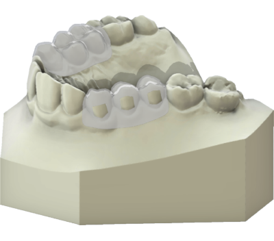 maestro3d | Dental Studio | Ortho Studio | Clear Aligner | Brackets Tray with windows