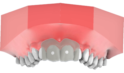 maestro3d | Dental Studio | Ortho Studio | Clear Aligner | Etching guide for attachment placement