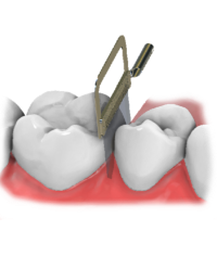 Maestro 3D | Dental Studio | Ortho Studio | IPR | Interproximal Reduction
