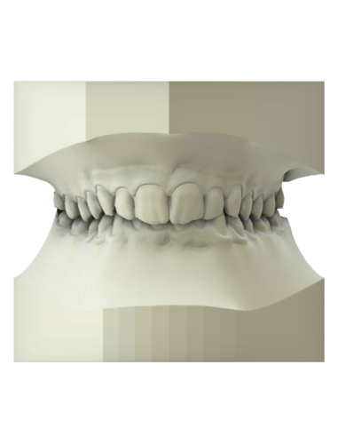 maestro3d | Dental Studio | Ortho Studio | Study Models