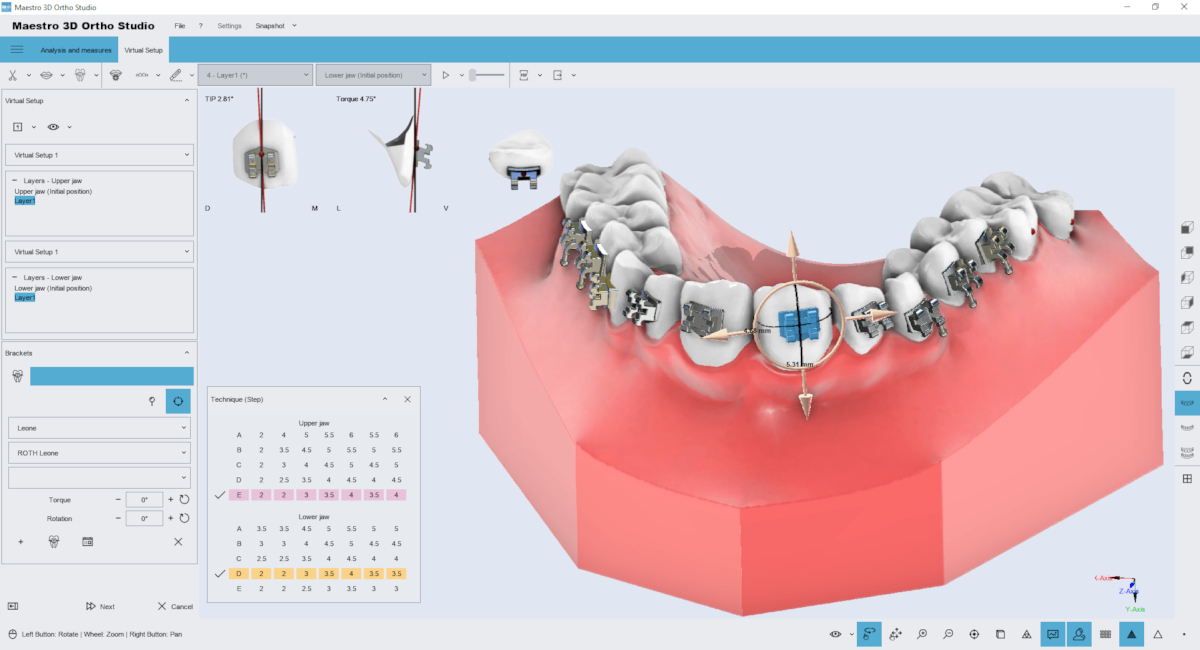 maestro3d | Dental Studio | Ortho Studio | Brackets Placement