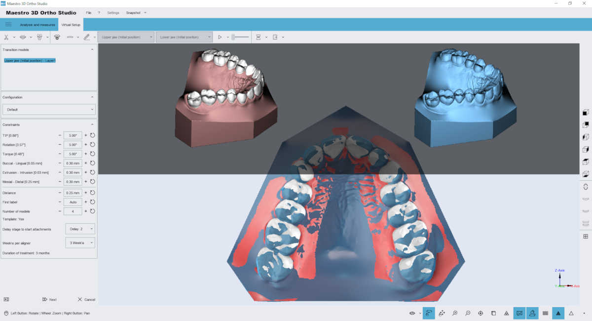 maestro3d | Dental Studio | Ortho Studio | Models Builder module
